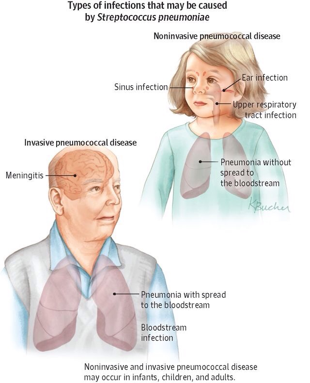 infections caused by Streptococcus pneumoniae