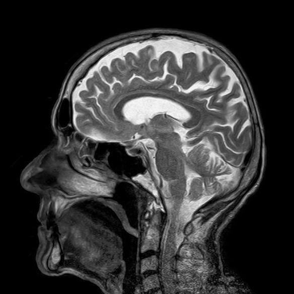 an MRI of the human brain