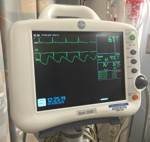 a heart monitor showing a heart tracing EKG