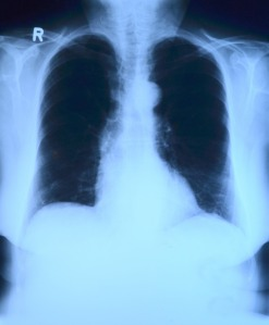 an xray of healthy lungs with no signs of pneumonia.