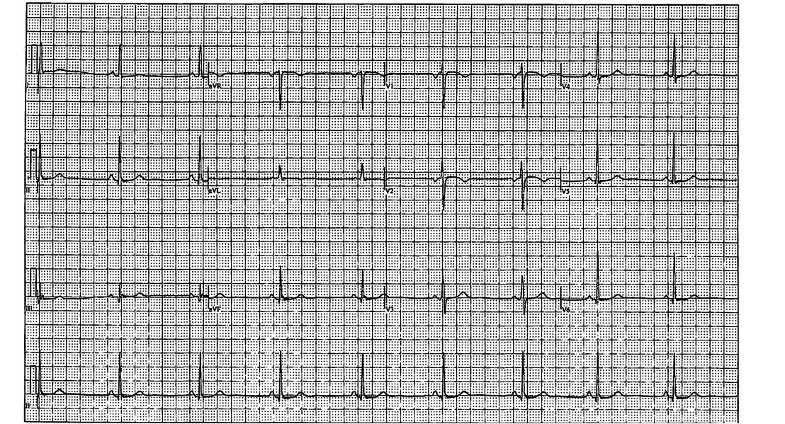 electrocardiogram- tracing