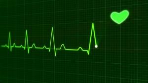 EKG tracing