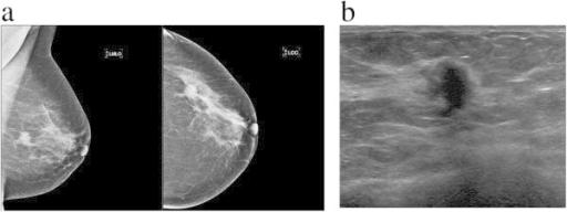 a mammogram image