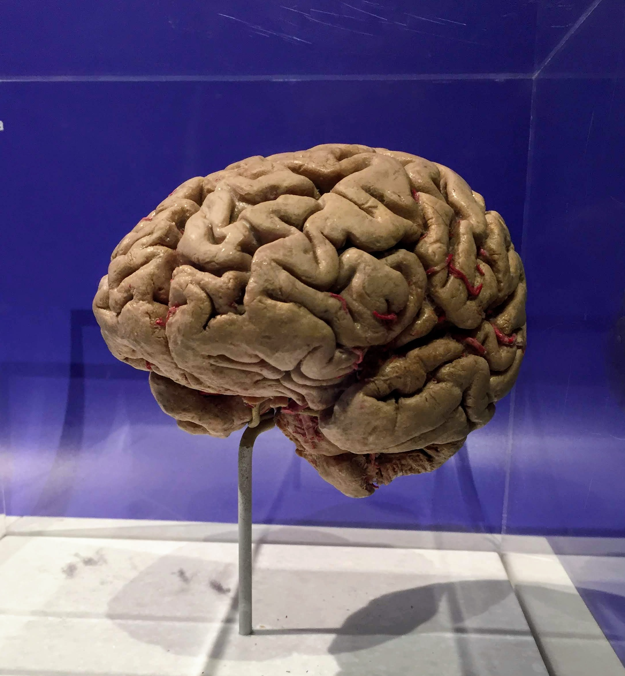 a preserved human brain