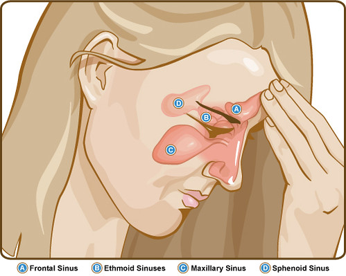 a diagram of the sinuses