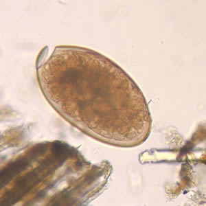 Fasciola hepatica egg in an unstained wet mount (400x magnification): F. hepatica eggs are broadly ellipsoidal, operculated, and measure 130–150 μm by 60–90 μm. (CDC Photo: DPDx)